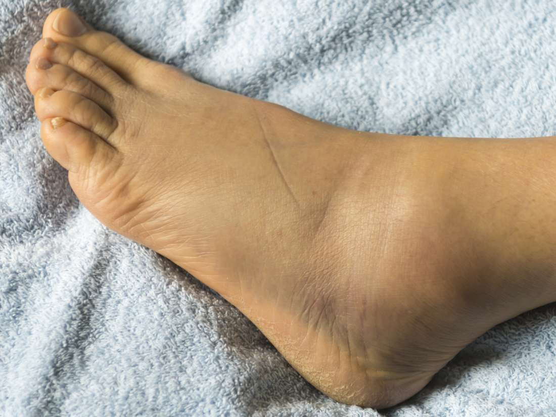 Remedy for swelling on foot